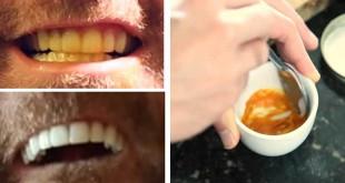 dentes_brancos_truque